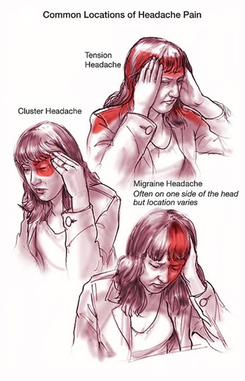 Natural ways to relief from headache